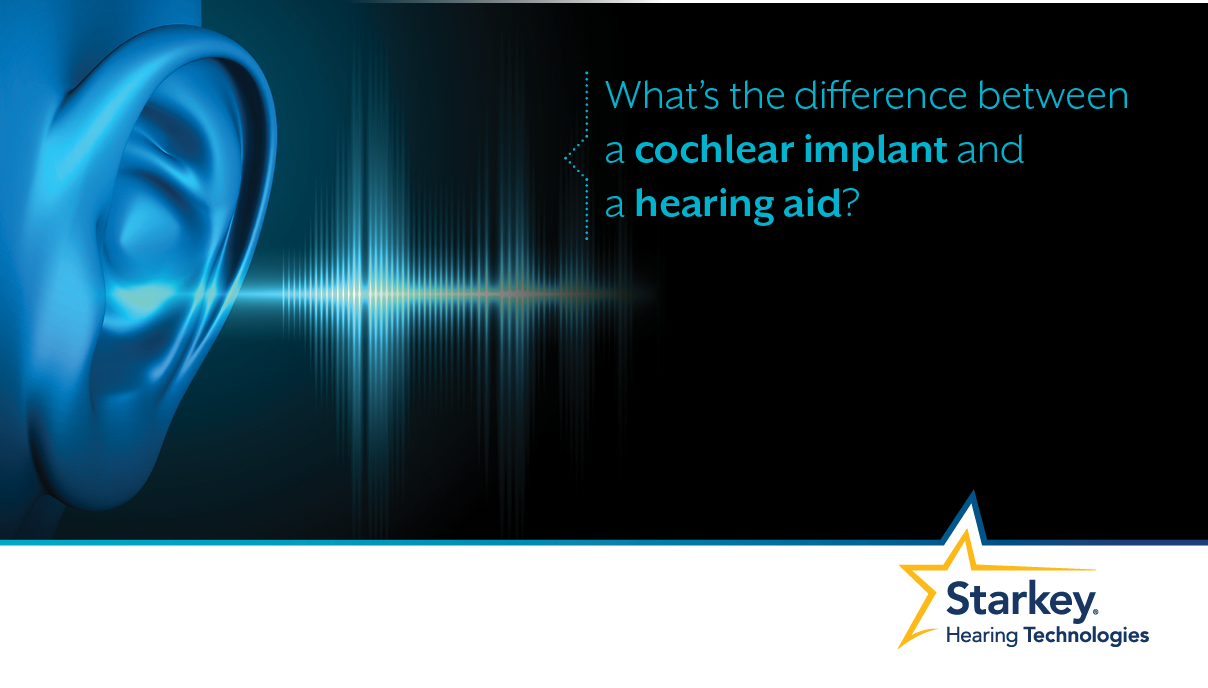 Digital Hearing Aids >> What's the difference between a cochlear implant and a ...