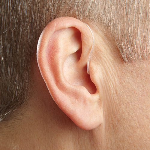 RIC hearing aid from Starkey Hearing Technologies for tinnitus