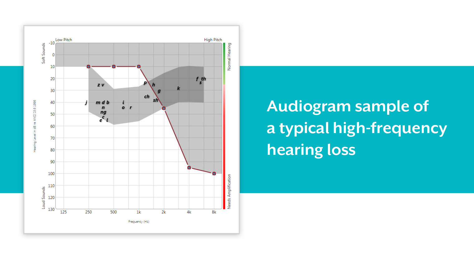 High-Frequency hearing loss audiogram sample.