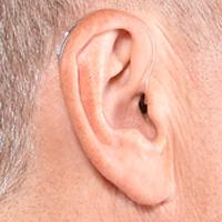 Phonak Hearing Aid Repair - Quality Hearing Aid Repair